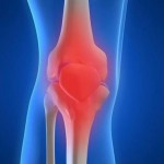Osteoarthritis of the joints. Лечение артроза народными средствами
