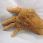 Revmatoidnyj artrit